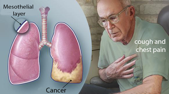 Mesothelioma_Causes-Symptoms-Treatment-Prevention
